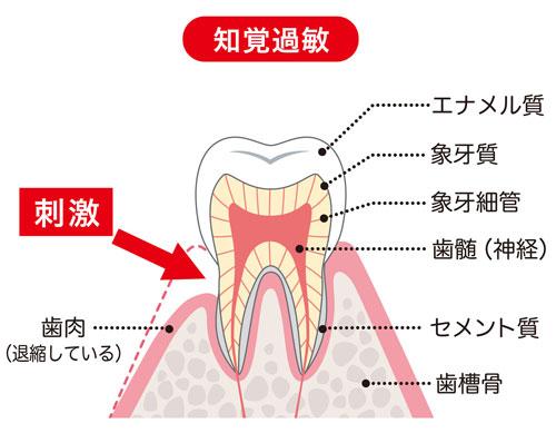 過敏 治療 知覚 知覚過敏(象牙質知覚過敏症)の原因・症状・治療・予防